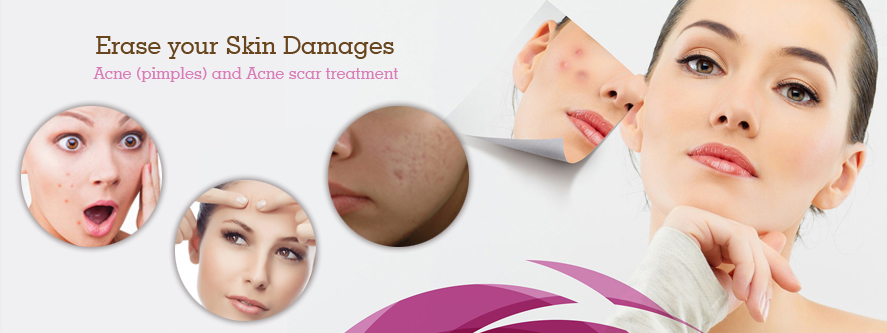 Acne Scar Treatment in Pune, Acne Treatment , Pimples Treatment and Scar Treatment