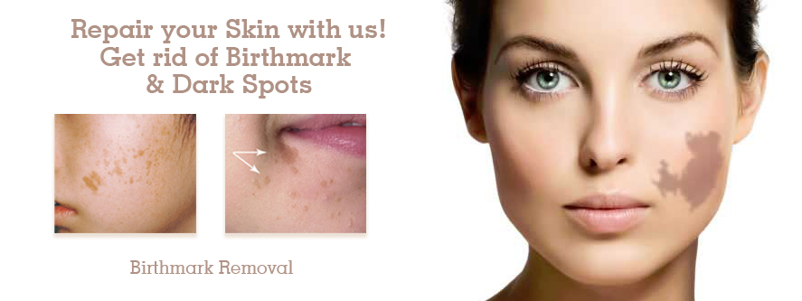 Birthmark Removal in Pune, Best Birthmark Removal Surgery Clinic in Pune
