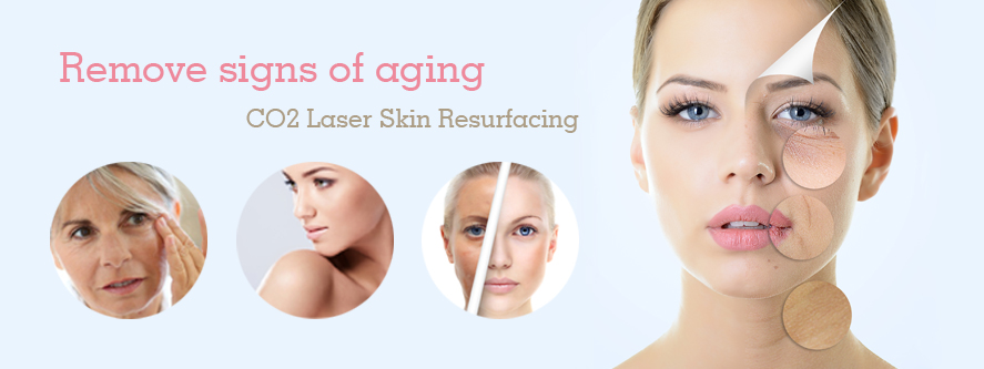 co2-laser-skin-resurfacing