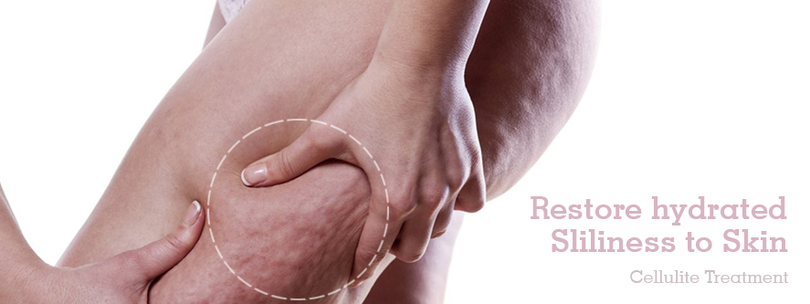 Cellulite Treatment in Pune, Best Cellulite Treatment Surgery Clinic in Pune
