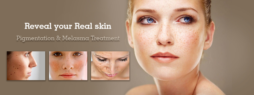 pigmentation-melasma-treatment