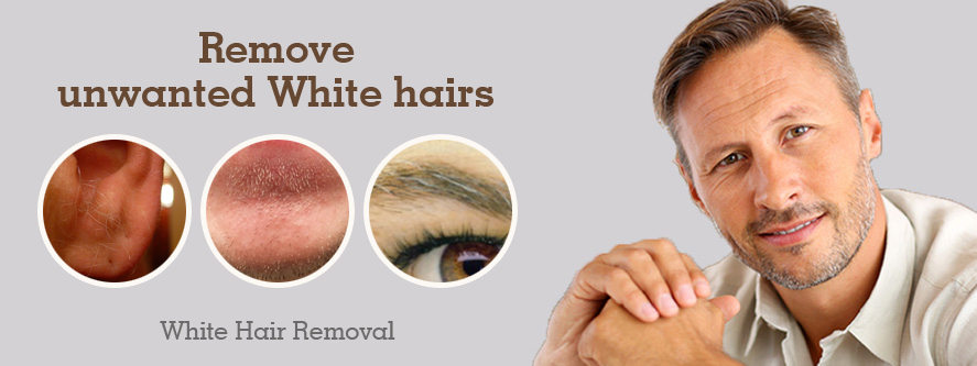 white-hair-removal