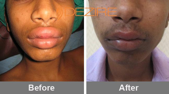 lip hypertrophy Delhi, Pune, Bangalore, Gurgaon