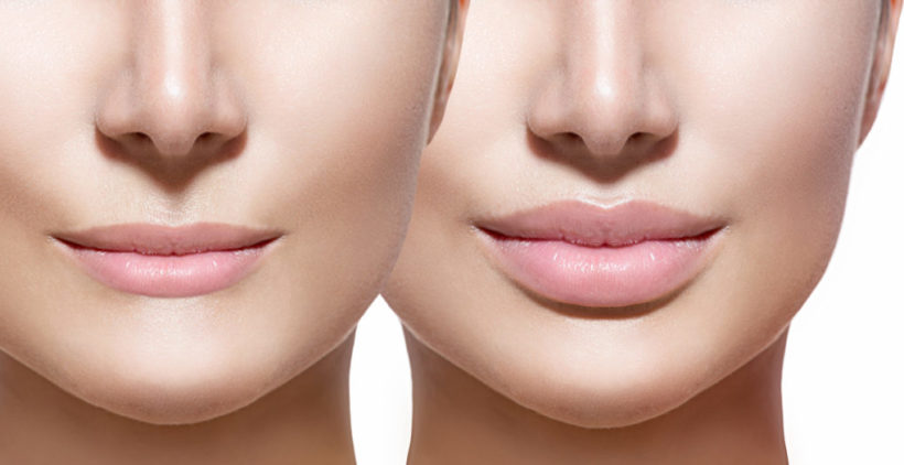 Lip Reduction Surgery Trends in Indian Women